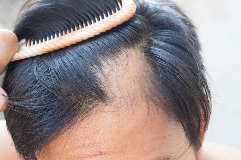 آلوپسی یا از دست دادن موها - انواع مختلف ، علل ایجاد و درمان آلوپسی چیست ؟