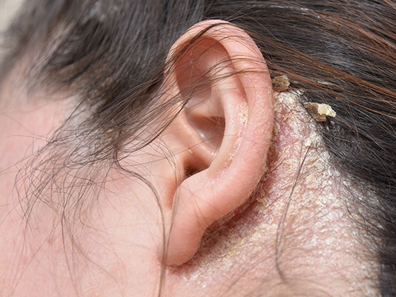 درماتیت سبورئیک ، علایم ، علل و درمان آن چیست ؟