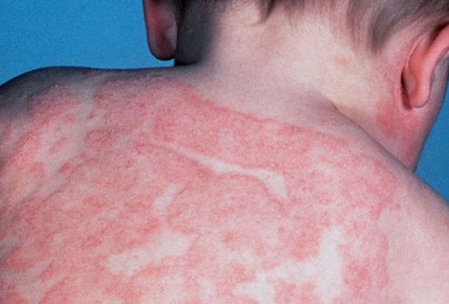 اگزمای آتوپیک و علائم و نحوه درمان آن چیست ؟