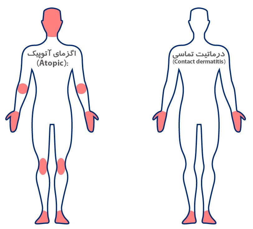 علایم اگزمای آتوپیک