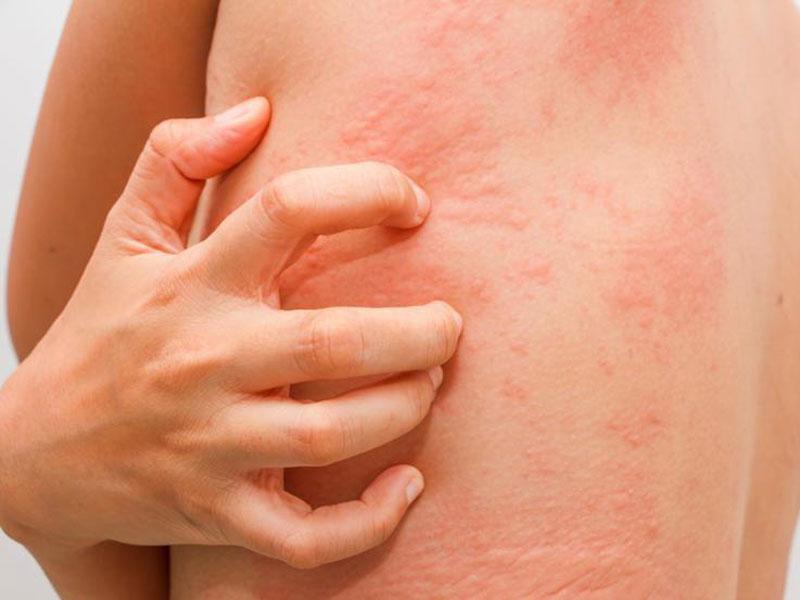 عفونت قارچی پوست ، علائم و نحوه درمان آن چیست ؟
