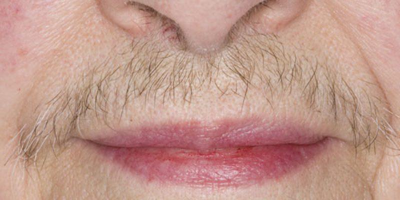 پر مویی ، علل ایجاد و نحوه درمان پر مویی چیست ؟